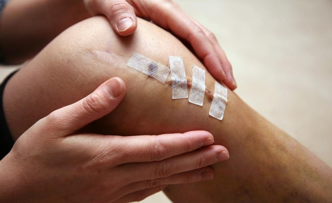 Common injuries that affect the knee and that require knee surgery