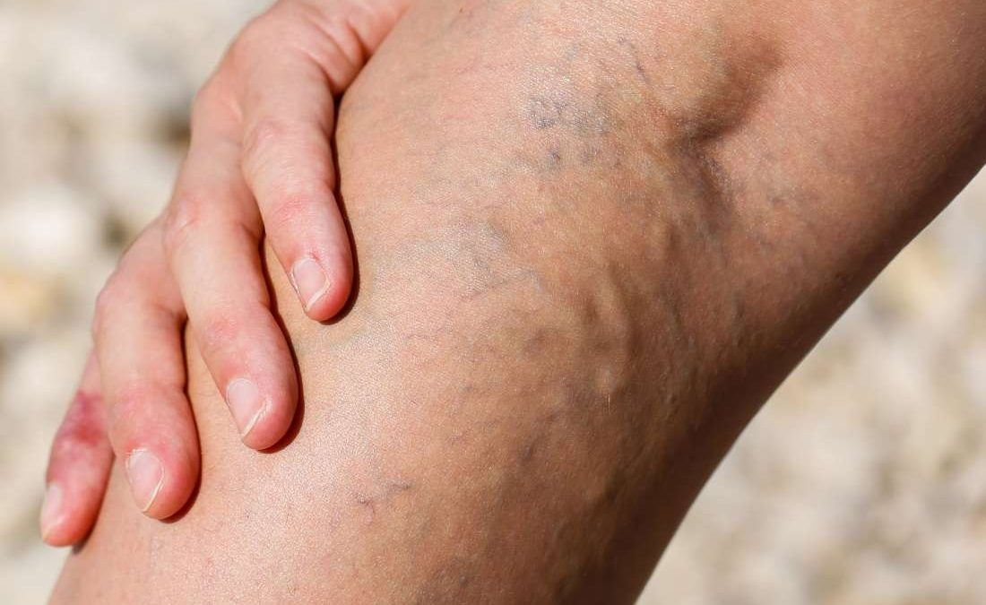 At-Home Varicose Vein Treatment Options