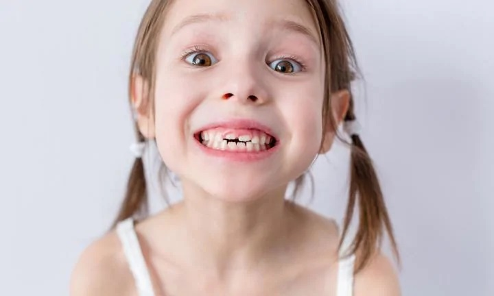 4 Ways Children Can Prevent Crooked Teeth