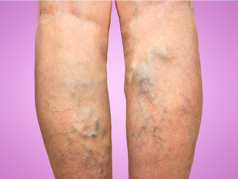 Five Risks of Leaving your Varicose Veins Untreated