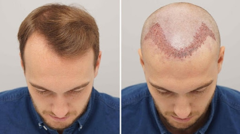 How To Find The Best Hair Transplant Clinic In Jaipur?