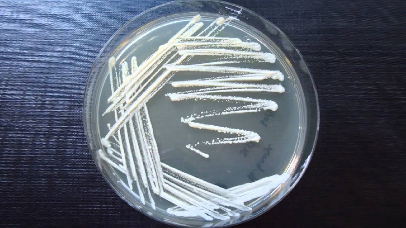 A Beginner's Guide to Microbiology Streaking