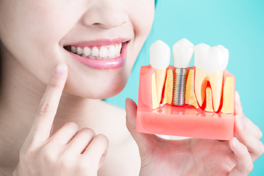 5 Things to Consider When Getting Dental Implants