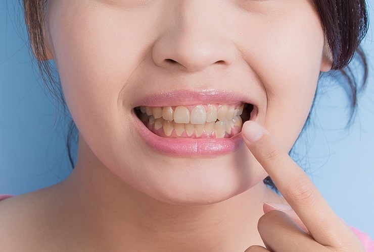 Naturally Whiten Your Teeth With These 5 Simple Solutions