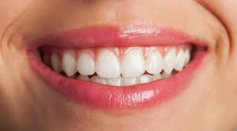 Make Your Smile Extra Dazzling with Cosmetic Dental Work