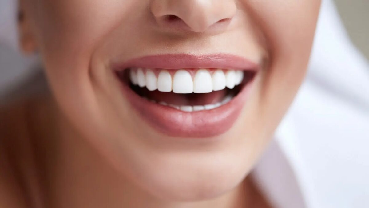 Are Porcelain Veneers Your Best Bet For Whiter Teeth?