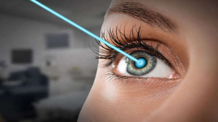 A-Z Doubts Regarding Lasik Eye Surgery Clarified – Ditch Your Contact Lens And Eye Glasses
