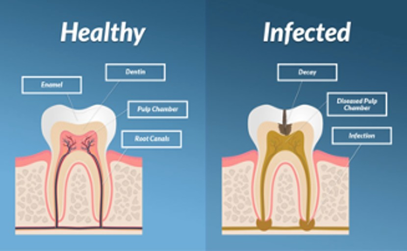 7 Important Root Canal Recovery Tips