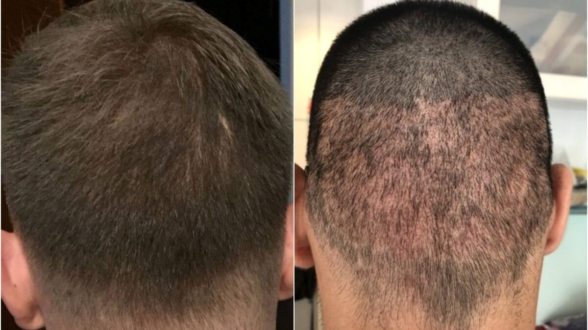 FUE Hair Transplant: Recovery Tips for Getting the Desired Results